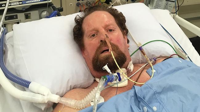 Craig Hardy, in hospital stuck down with the rare Guillain-Barre Syndrome. Picture: supplied.