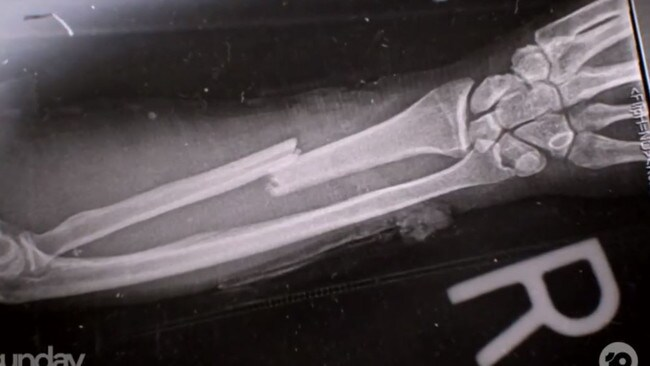 Quinton was left with a broken arm. Picture: The Project.