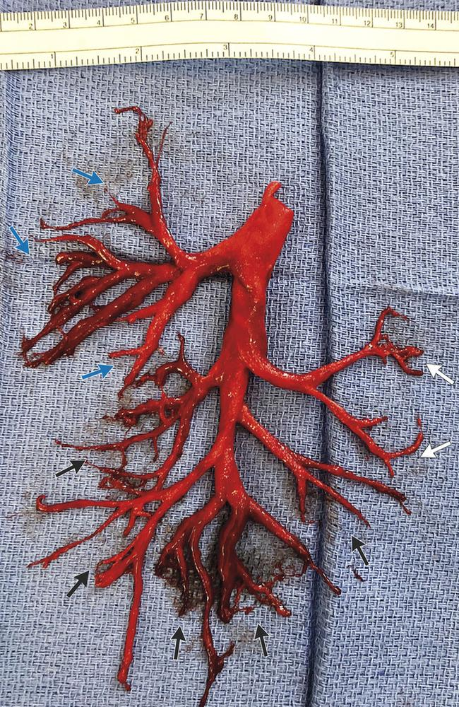 The blood clot coughed up by a man. Picture: New England Journal of Medicine