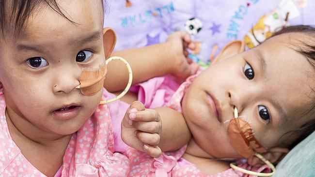 Infant twins joined at torso undergo major surgery in Melbourne