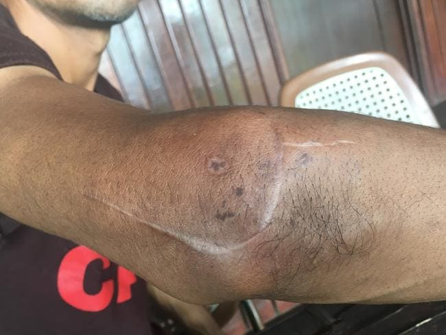 A Bangladeshi asylum seeker shows off a scar after he was allegedly cut across his elbow and robbed of his phone in June at the Manus Island immigration detention centre. Picture: AAP Image/Human Rights Watch