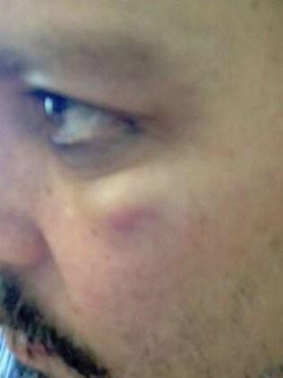 The bruising under Johnny Depp's eye. Picture: Fairfax County Court.