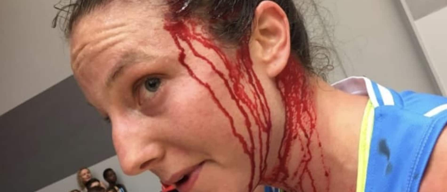 Kelsey Griffin was busted open against Perth Lynx. Picture: The Canberra Times.