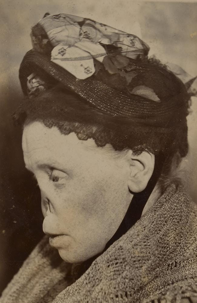 Face of a woman with a typical 'syphilitic nose'. Picture: St Bartholomew's Hospital Archives & Museum, Wellcome Images
