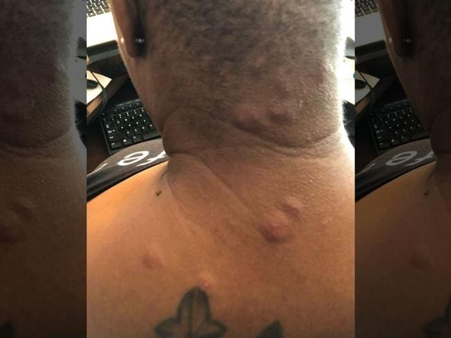The guest claims she suffered physical and emotional damage after waking up at Disneyland Hotel covered in bedbug bites. Picture: My Bed Bug Lawyer, Inc