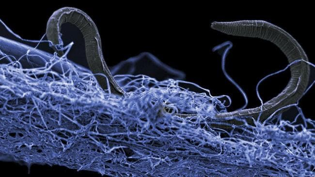 This photo shows a nematode (eukaryote) in a biofilm of microorganisms, an unidentified nematode (Poikilolaimus sp.) from Kopanang gold mine in South Africa,which lives 1.4km below the surface. Picture: Gaetan Borgonie