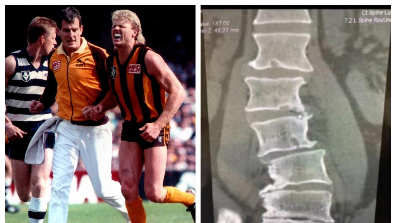 Dermott Brereton and the extent of his football injuries.