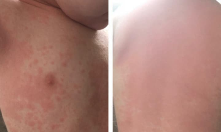 A mum's warning: Never ignore an unusual rash