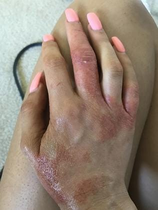 She suffered from eczema after having the surgery.