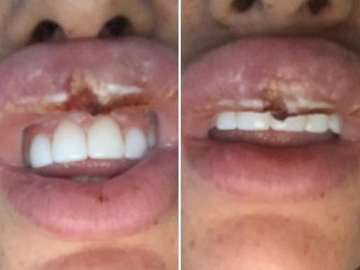 Ms Knappier said the Botox was injected into her artery, leaving her with horrific injuries.