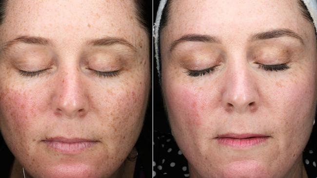 Pico Genesis Laser: 30 minute treatment gives best skin results
