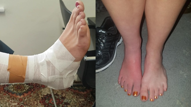 Ebony's foot whilst on crutches with a CRPS flare that would last for at least a week with a '10/10 pain level'. Image: Supplied.