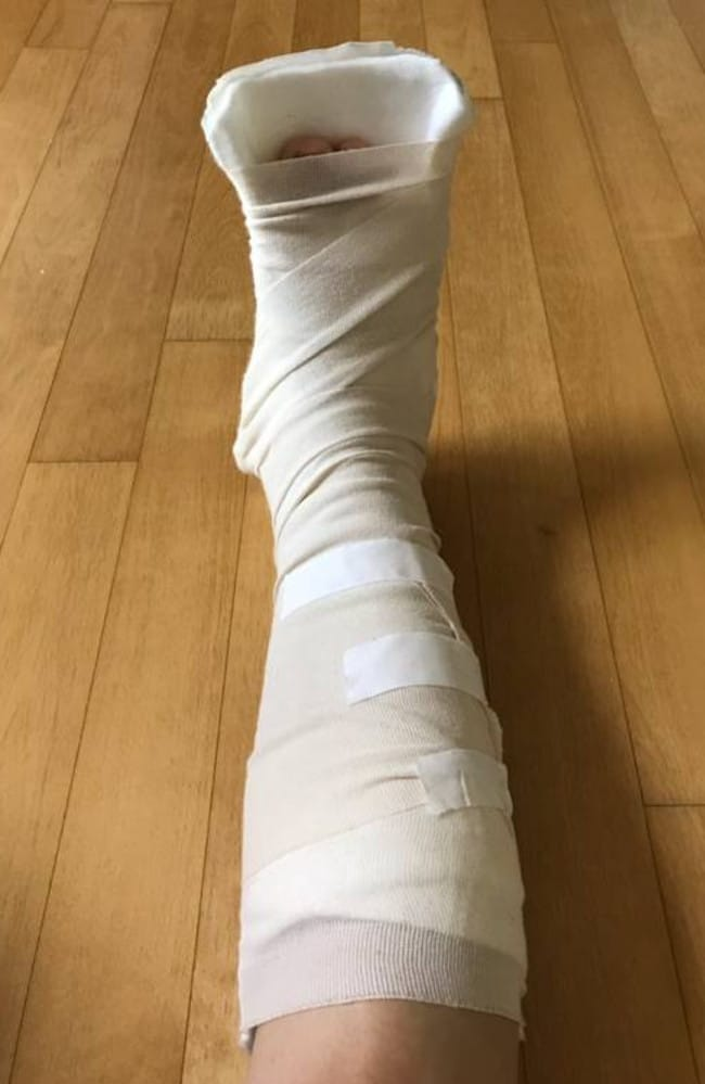 Leena Son's holiday to South Korea was ruined after she needed hospital treatment for a fractured ankle on a Korean Air flight. Picture: Supplied/New Zealand Herald.