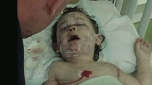 The little girl was left with life-changing injuries. Picture: BBC