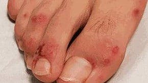 A study has found a new COVID-19 symptom called 'Covid toes'. Picture: Journal of the American Academy of Dermatology