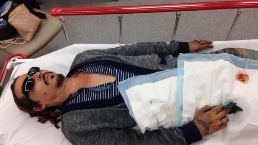 Handout photo released by Johnny Depp's lawyers showing him in hospital with a severed finger. Picture: Schillings