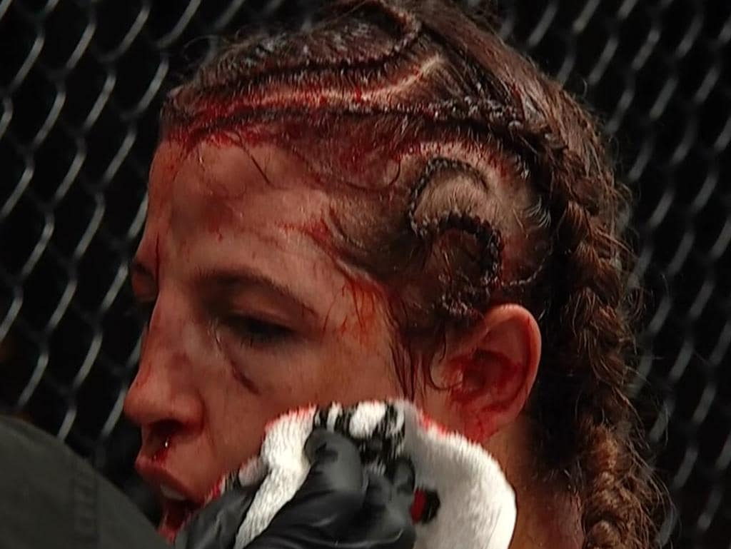 This is what fighting Amanda Nunes looks like.