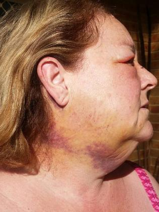Bruising to Linda's neck from the accident. Picture: Supplied