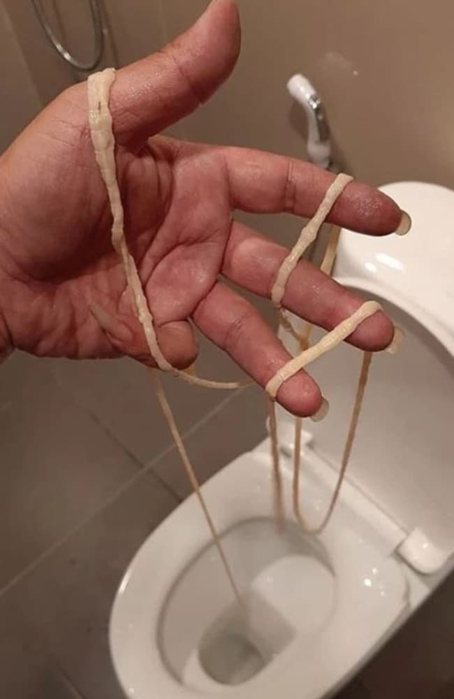When a man went to the toilet, he pulled a live, wriggling tape worm out from his backside. Picture: Facebook