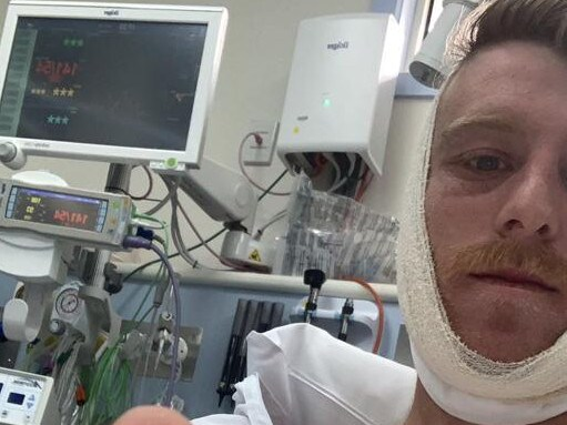 Jayden Regan with his jaw strapped up in Rosebud Hospital on Saturday afternoon.