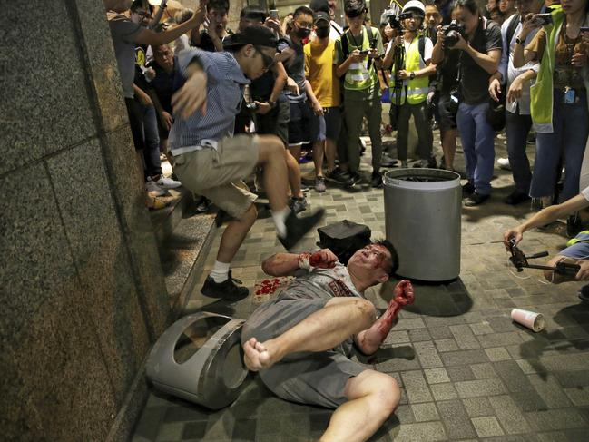 A man hits a suspected attacker in Taikoo Plaza. Picture: Elson Li/HK01 via AP