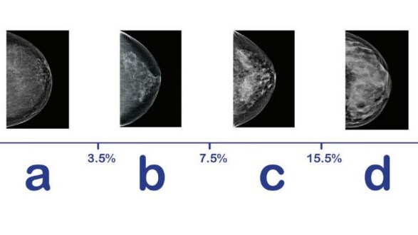 The images above show an increasing degree of dense tissue in breasts.