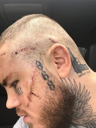 Photo of facial stitches and 'crime pays' tattoo.