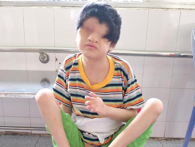 Tran Huynh Thuong Sinh, aged 13, with Fraser Syndrome — a rare genetic disorder characterised (as in Tran's case) with partial webbing of the fingers and/or toes, kidney abnormalities, genital malformations and complete fusion of the eyelids. Photo: Ash Anand / NEWSMODO