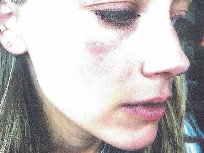 Bruising on Amber Heard's face she claims was inflicted by Johnny Depp. Picture: Splash News