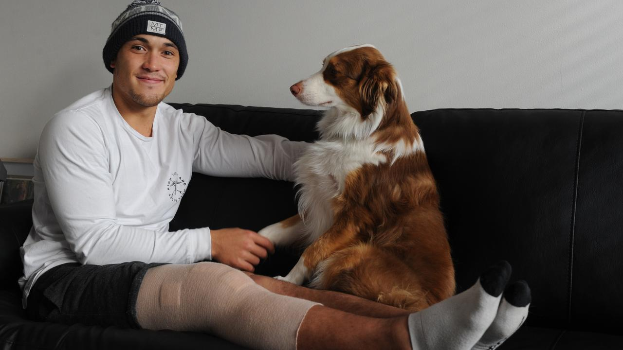 Alex Woodward has had surgery on his ACL four times. Picture: Andrew Henshaw