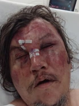 His unknown attacked punched and kicked him in the face. Picture: 9 News