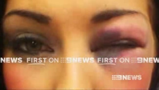 A Brisbane woman has told police she was punched by Ben Te'o. She has conducted a tell-all interview with Channel Nine, which was aired Wednesday night.