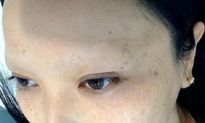Woman left with no eyebrows warns of dangers of cosmetic tattoo trend