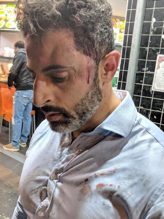 An alleged victim of a bashing at Arncliffe. Picture: Twitter