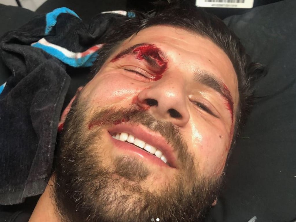 Panthers star Josh Mansour posted a graphic image of his head cut on Instagram.