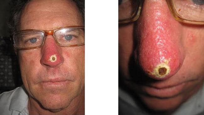 Bill O'Leary's nose after applying black salve.