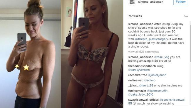 Simone Anderson weight loss: Woman shares photo of amazing