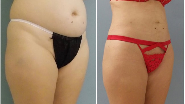 A 41-year-old patient of Dr Meaghan's before and three months after liposculpture