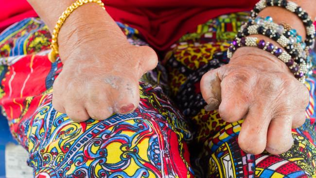 Hands of an Asian women who has lost fingers to leprosy. Picture: Shutterstock