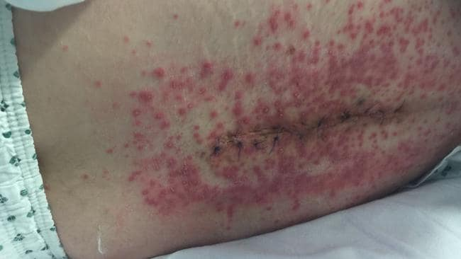 The father-of-two contracted meningitis three times as a result of his spinal cord becoming infected. Picture: SWNS / MEGA