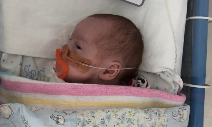 What no one tells you about having a premature baby
