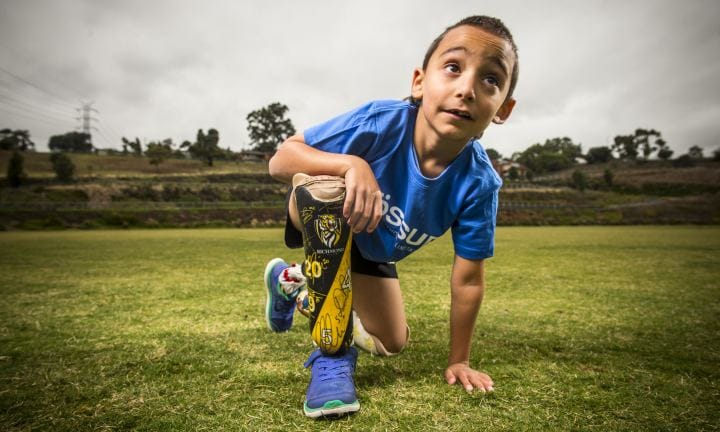 'My boy is just like everyone else - he just doesn't have feet'