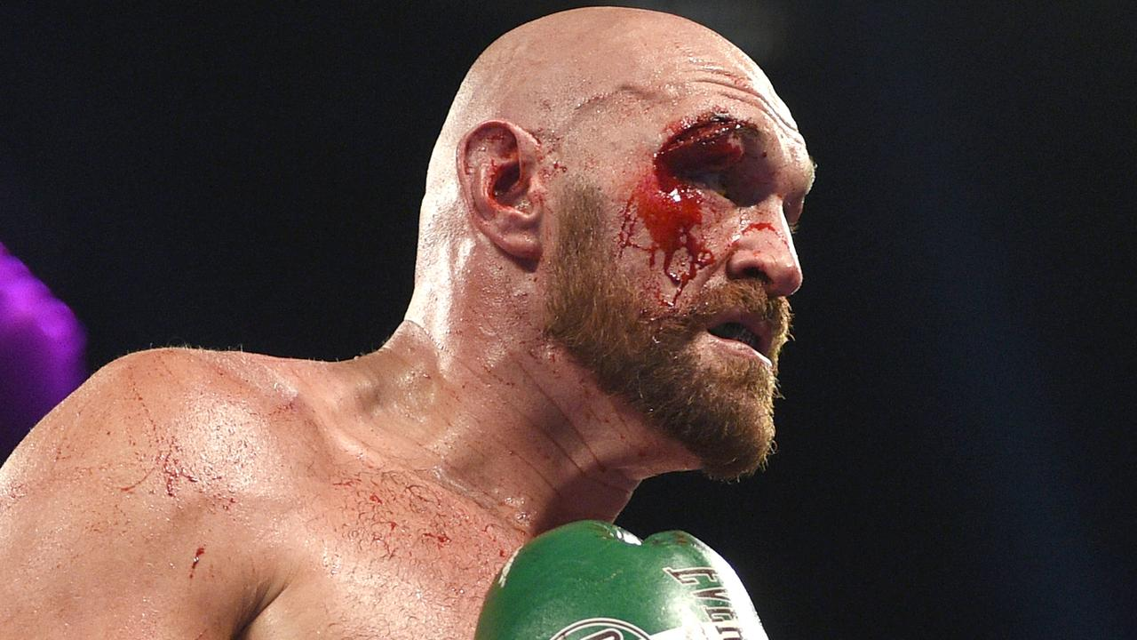 Tyson Fury embarrassed Deontay Wilder in their last fight. (Photo by David Becker/Getty Images)