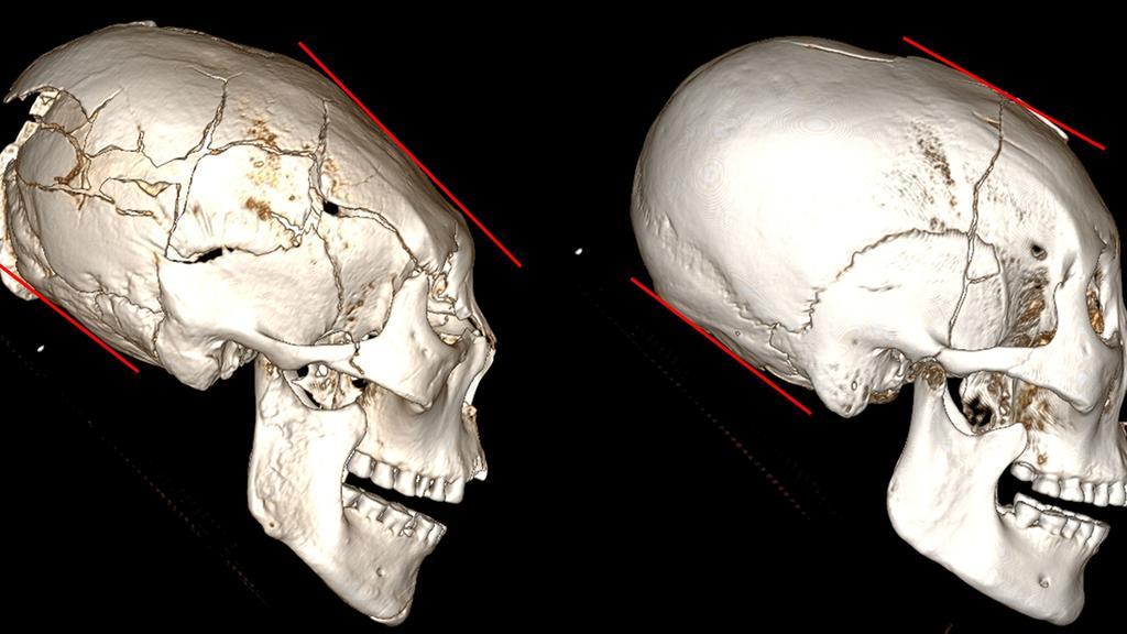 Les méthodes utilisées pour former les crânes différaient d'une culture à l'autre.  Image: Université de Jilin
