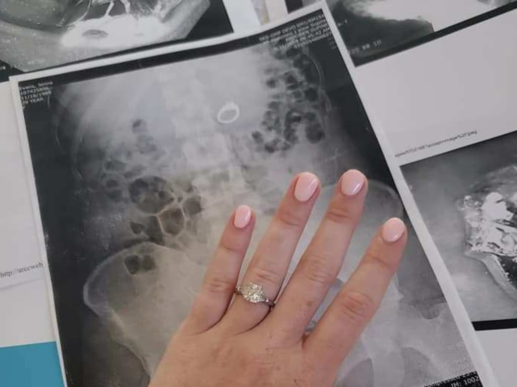 Jenna Evans shows the large cushion diamond ring, which was removed by a gastroenterologist. Picture: Facebook