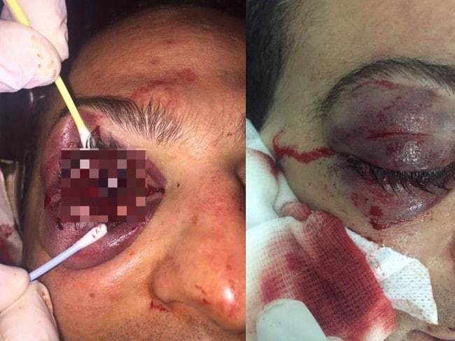 A Ukrainian tourist who refused to pay a $68 bill was left blind in one eye. Picture: Supplied