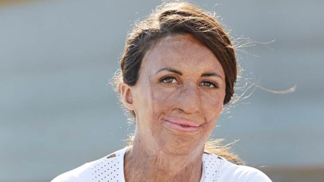 Find yourself a woman to look up to like Turia Pitt, says Chloe. Image: Supplied