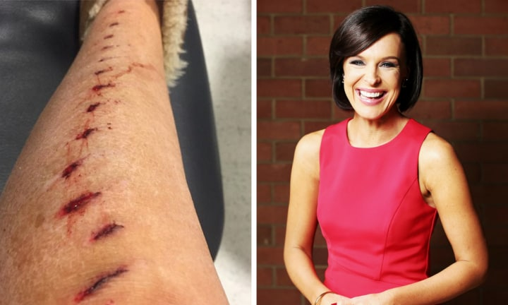 'Very sore and sorry': Natarsha Belling on crutches after shocking fall