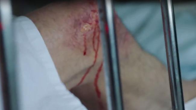 A gruesome scene from Stop the Horror.