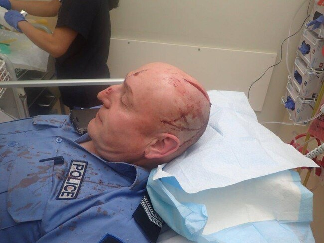 A samurai sword attack on an Australian cop left him with a gaping wound to his head. The attacker, a former boxer, has been found guilty of attempted murder. Picture: Supplied
